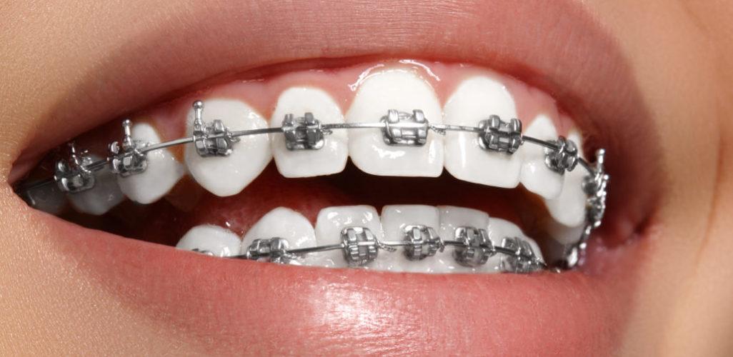 Metal-braces-1026x500